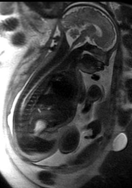 Magnetic resonance image of a fetus at 36 weeks gestation.